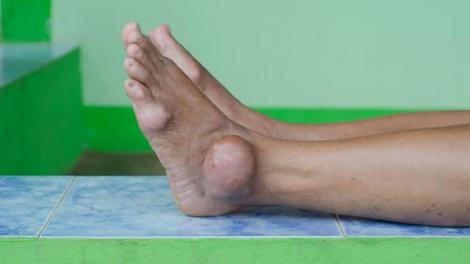 Gout patients often have acute inflammation around their joints.