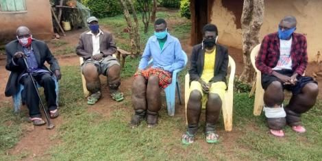 A family suffering from Elephantiasis